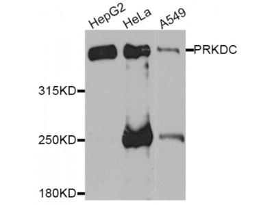 Anti-PRKDC antibody