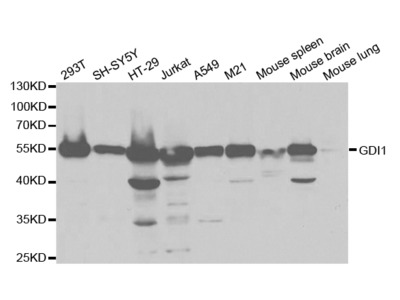 Anti-GDI1 antibody