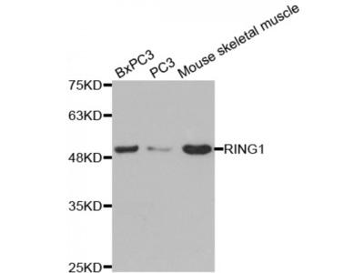 Anti-Ring1A antibody