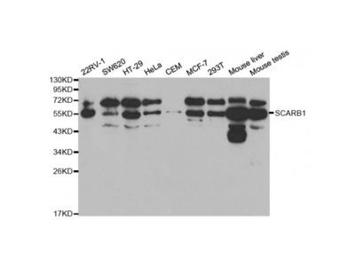 Anti-SCARB1 antibody