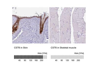 Anti-CST6 Antibody