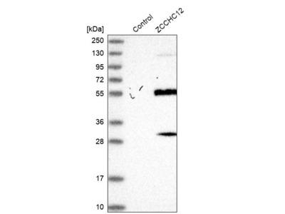 Anti-ZCCHC12 Antibody