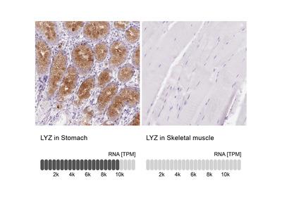 Anti-LYZ Antibody