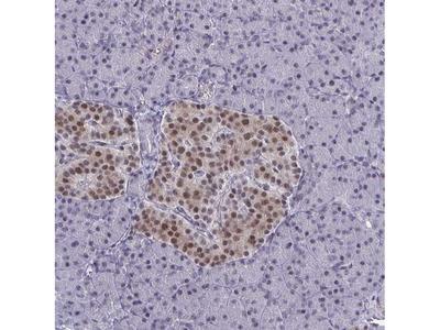 Anti-BCL7B Antibody