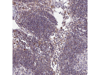 Anti-CSF3R Antibody