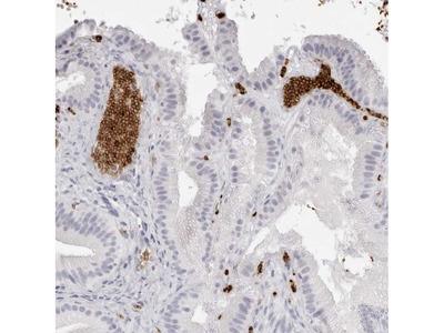 Anti-SPTA1 Antibody
