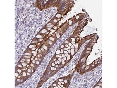 Anti-ZDHHC7 Antibody