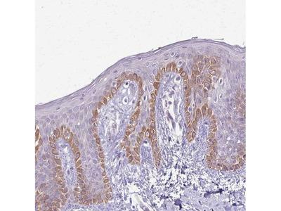 Anti-SLC35E2 Antibody