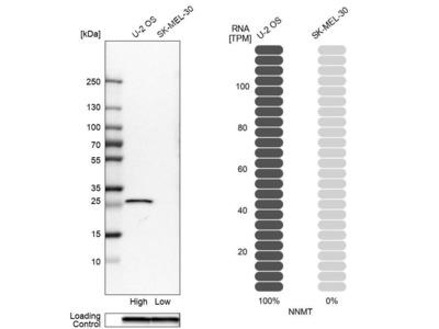 Anti-NNMT Antibody