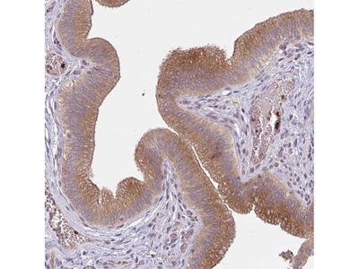Anti-SNF8 Antibody