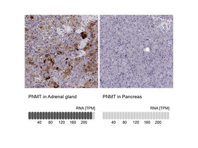 Anti-PNMT Antibody