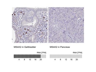 Anti-MS4A2 Antibody