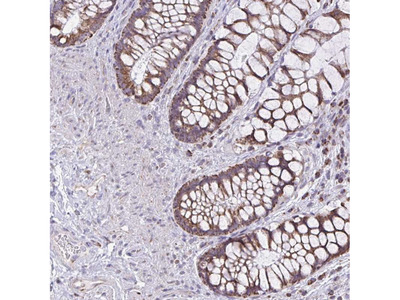 Anti-ZNF362 Antibody