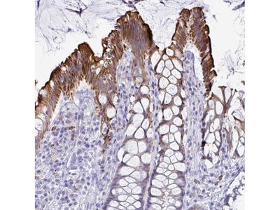 Anti-TAS2R38 Antibody