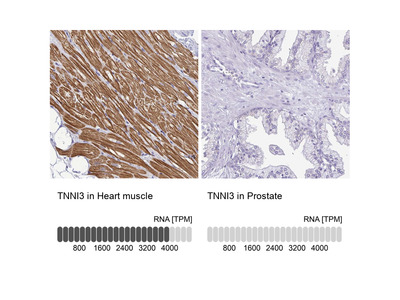 Anti-TNNI3 Antibody