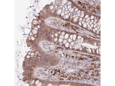 Anti-BEX2 Antibody