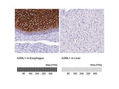 Anti-A2ML1 Antibody