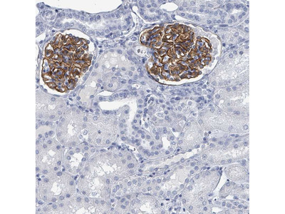 Anti-TAS2R1 Antibody