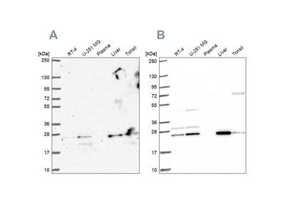 Anti-CMPK1 Antibody