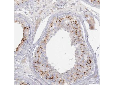 Anti-SLC2A11 Antibody