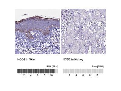 Anti-NOD2 Antibody