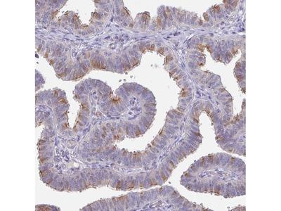 Anti-DCAF12L2 Antibody