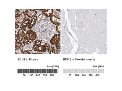 Anti-BDH2 Antibody