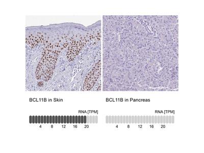 Anti-BCL11B Antibody