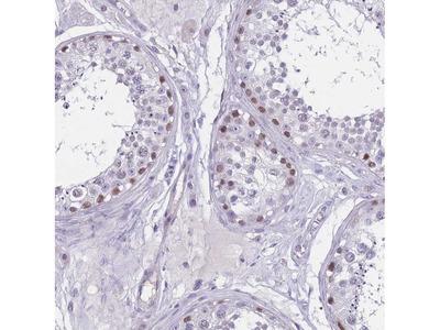 Anti-BOP1 Antibody