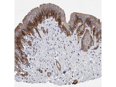 Anti-BCAM Antibody