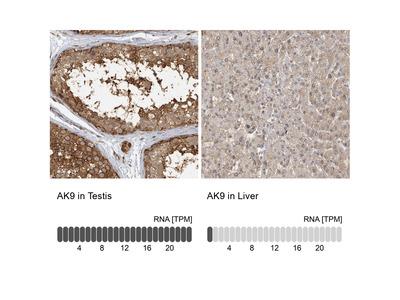 Anti-AK9 Antibody