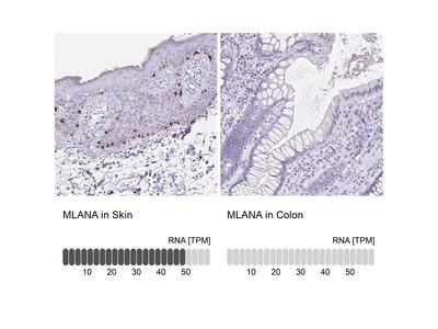 Anti-MLANA Antibody