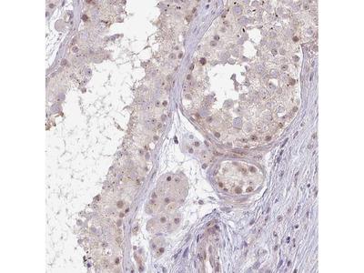 Anti-DZIP1 Antibody
