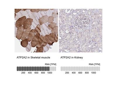 Anti-ATP2A2 Antibody