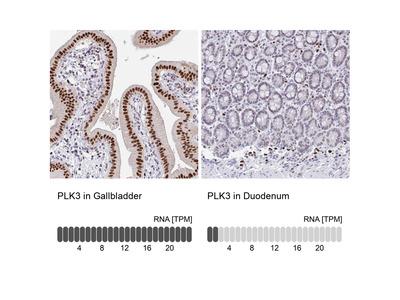 Anti-PLK3 Antibody
