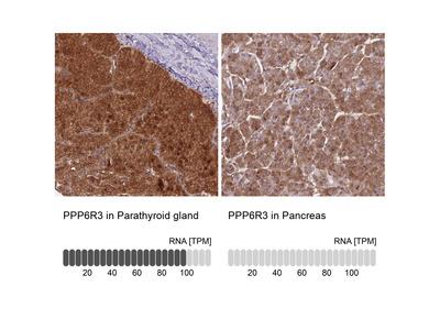 Anti-PPP6R3 Antibody
