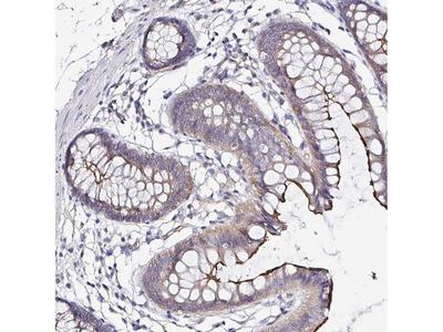 Anti-ARL4D Antibody