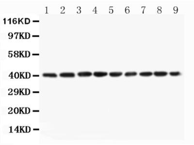 Anti-PON1 Antibody