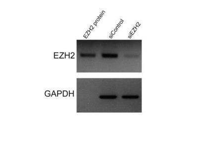 Mouse Monoclonal EZH2 / KMT6 Antibody