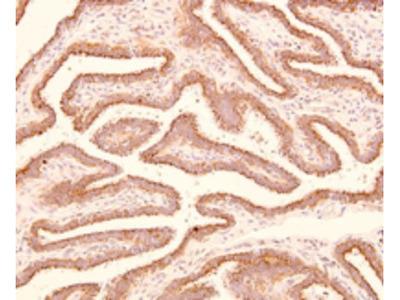 Mouse Monoclonal TROAP Antibody