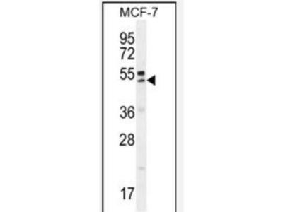 Rabbit Polyclonal QTRTD1 Antibody