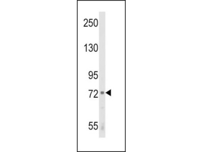 Rabbit Polyclonal 12-Lipoxygenase Antibody