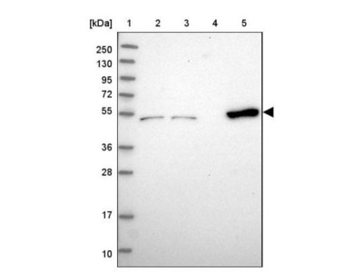 Coiled-Coil Domain Containing 149 Antibody
