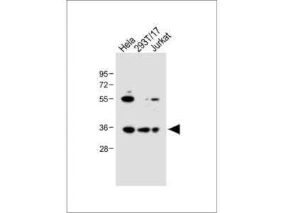 Rabbit Polyclonal BCKDHB Antibody