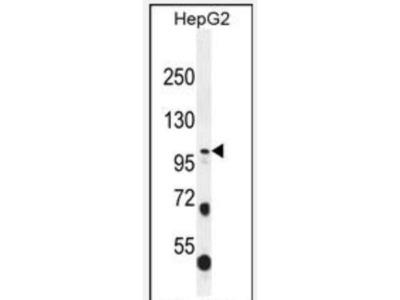 Collagen XXI Antibody (RB31769)