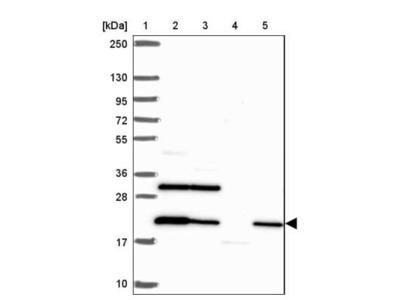 COPR5 Antibody