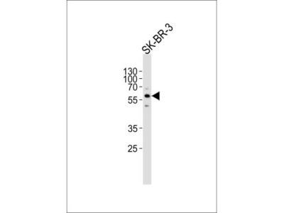 Cytochrome P450 3A5 Antibody (RB15796)
