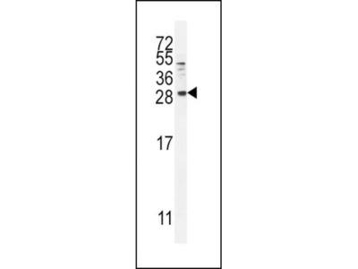 Betacellulin / BTC Antibody (RB14431)