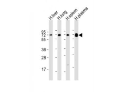 PLA2G7 / PAF-AH / Lp-PLA2 Antibody (RB21322)