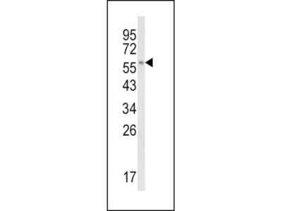 Rabbit Polyclonal CYP8B1 Antibody